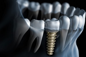 Dental Implant | Family Dental Care