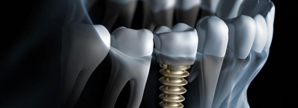 Dental Implant | Family Dental Care