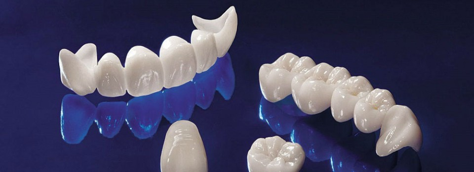 Crowns and Bridges | Family Dental Care