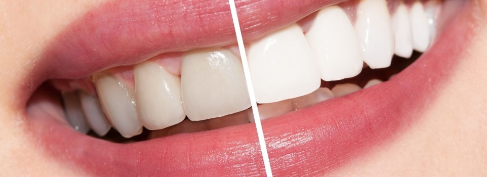 Teeth Whitening | Family Dental Care